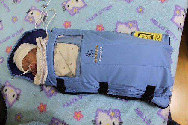 embrace bebe3 - Uma invenção simples que já salvou a vida de mais de 150 mil bebês prematuros.