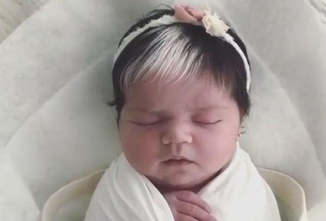 24943286 - Bebê nasce com mexa de cabelo branca e encanta com tamanha beleza