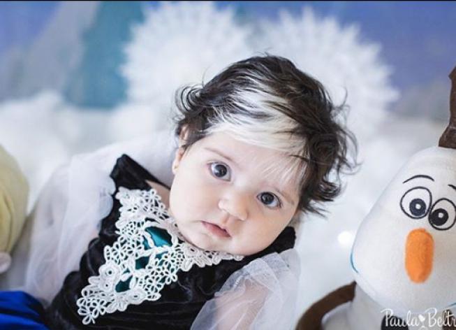 image - Bebê nasce com mexa de cabelo branca e encanta com tamanha beleza