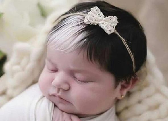 menina de minas gerais tem piebaldismo ou mecha branca no cabelo 34e74830 - Bebê nasce com mexa de cabelo branca e encanta com tamanha beleza