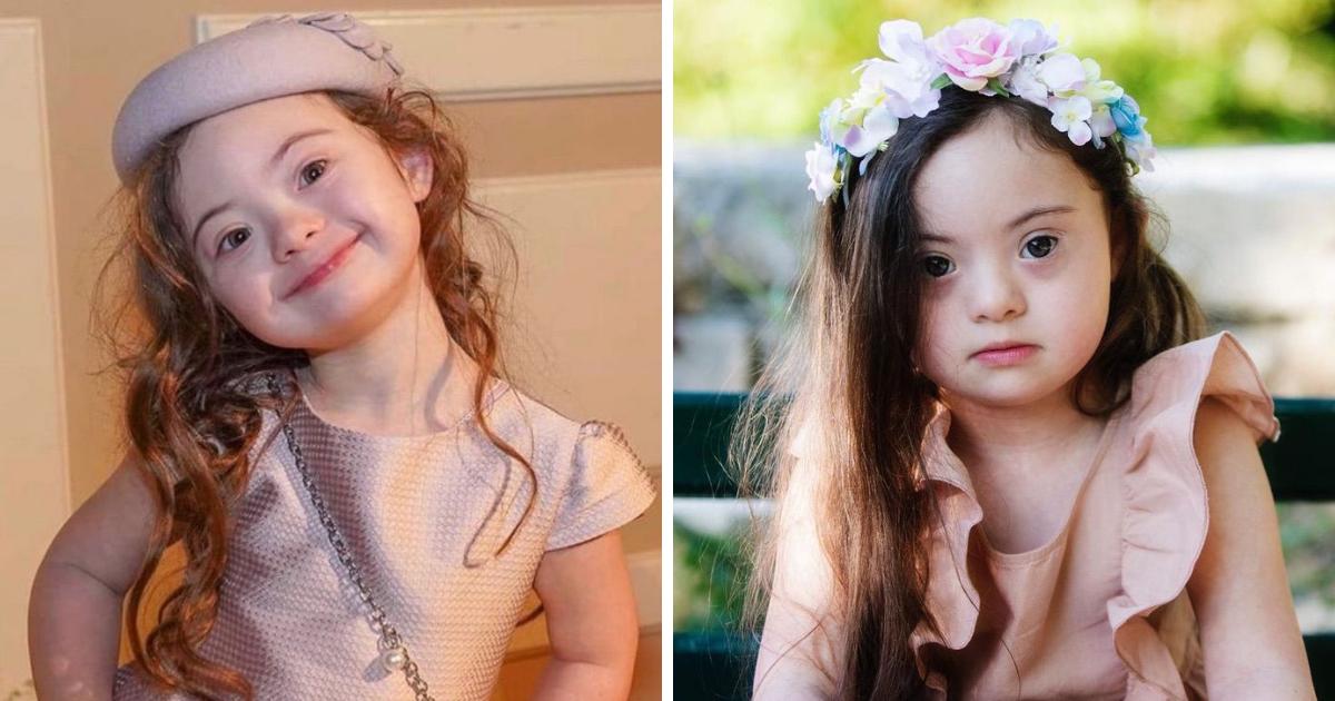 Design sem nome 65 - Menina de 4 anos com síndrome de Down fotografa pra Gucci. Ser diferente é de onde vem sua beleza