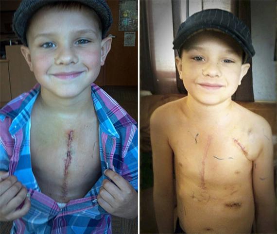 pai ensina filho a ter orgulho de cicatrizes no coracao07 4 thumb 570 - Pai ensina filho a ter orgulho das cicatrizes da cirurgia do coração